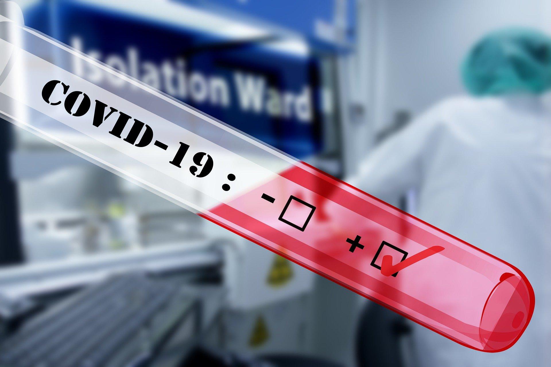 Авиапассажиры должны иметь отрицательный тест на COVID-19